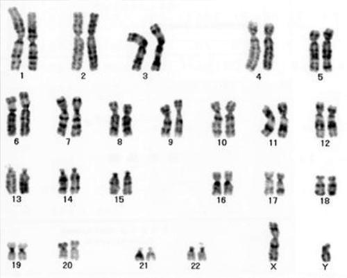 原因 染色体 異常